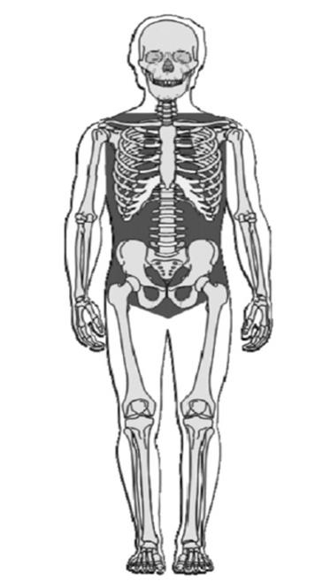 skeleton with non-compressible hemorrhage areas