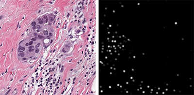 Microscopic view of automated cell detection and tumor cells embedded in stromal tissue with tumor-invading lymphocytes
